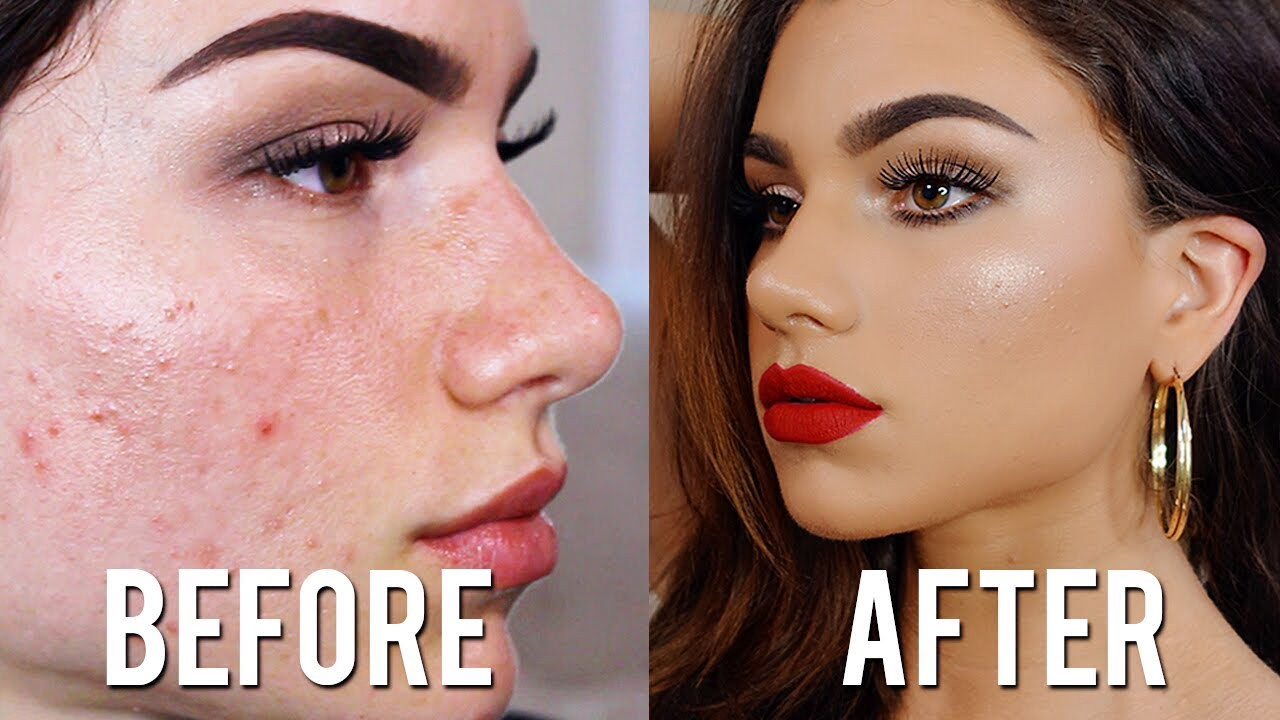 8 Effective Tips for Concealing Acne Scars  by makeup vanmiu
