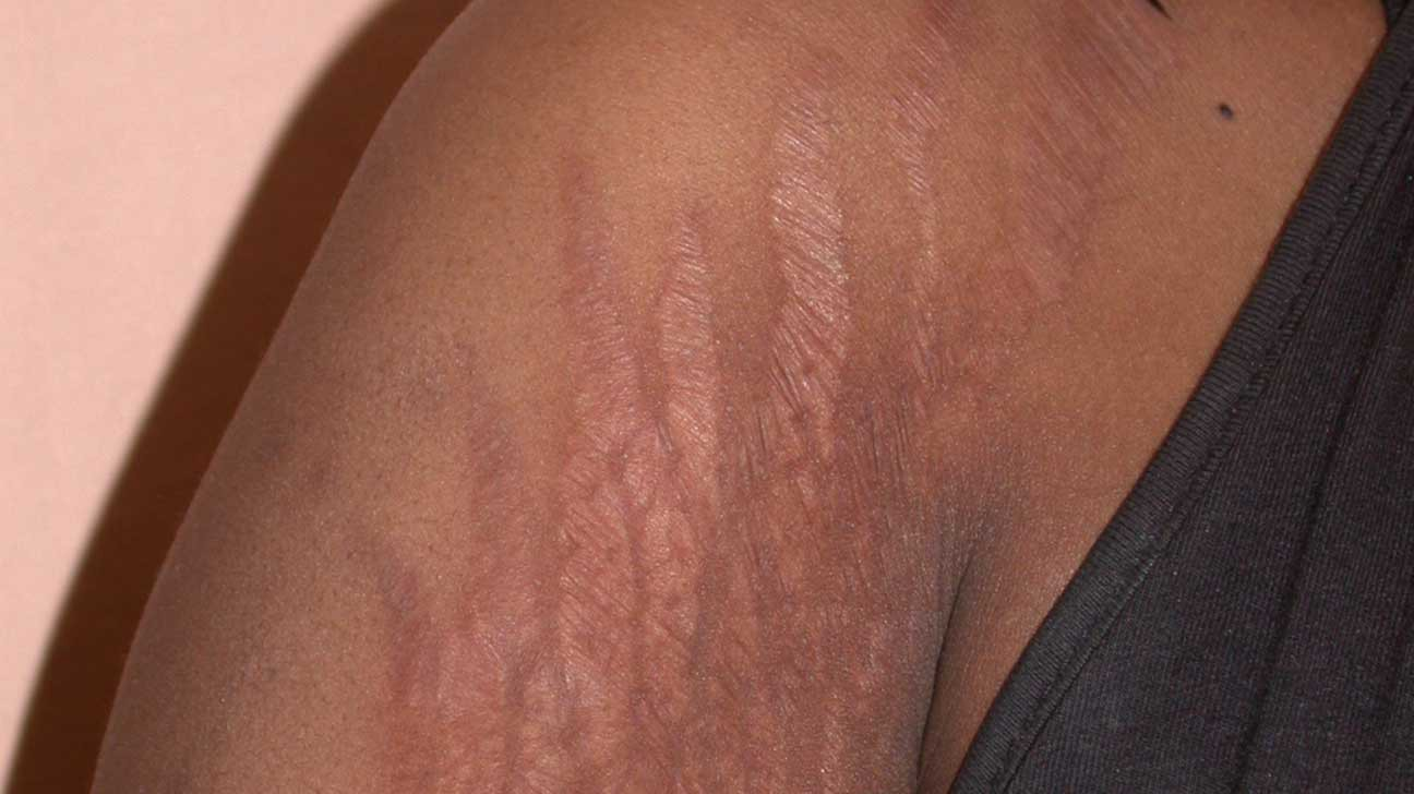 Cheap Cream  Stretch Marks Available For Pickup