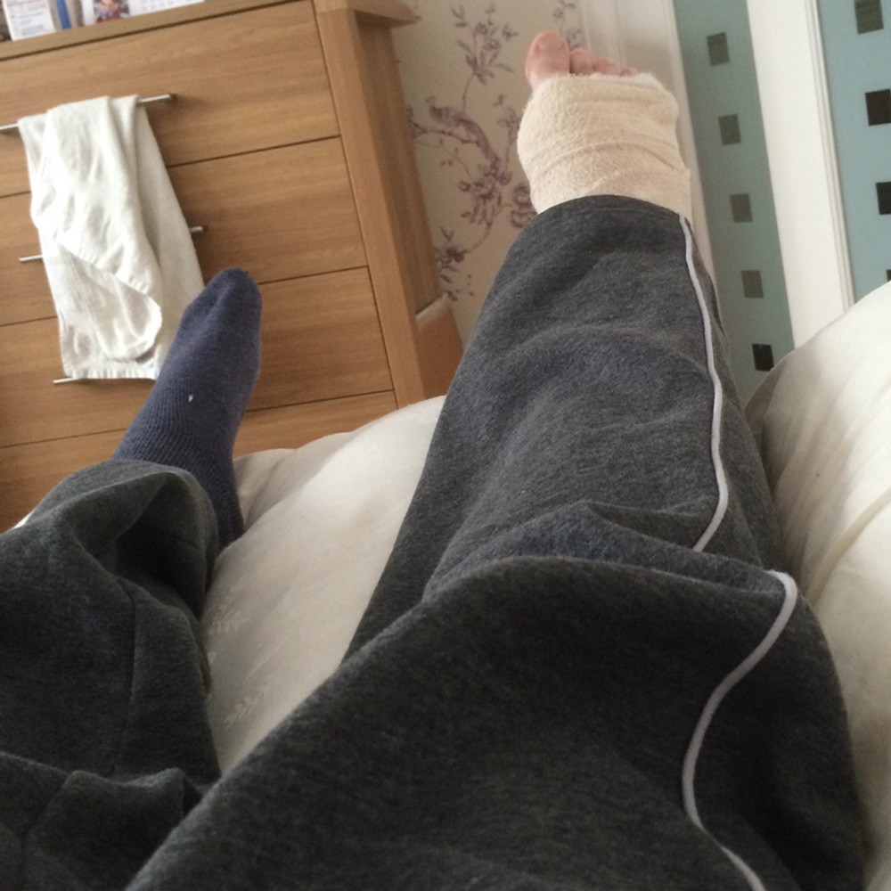 My fractured year: A broken ankle diary - Darryl Chamberlain