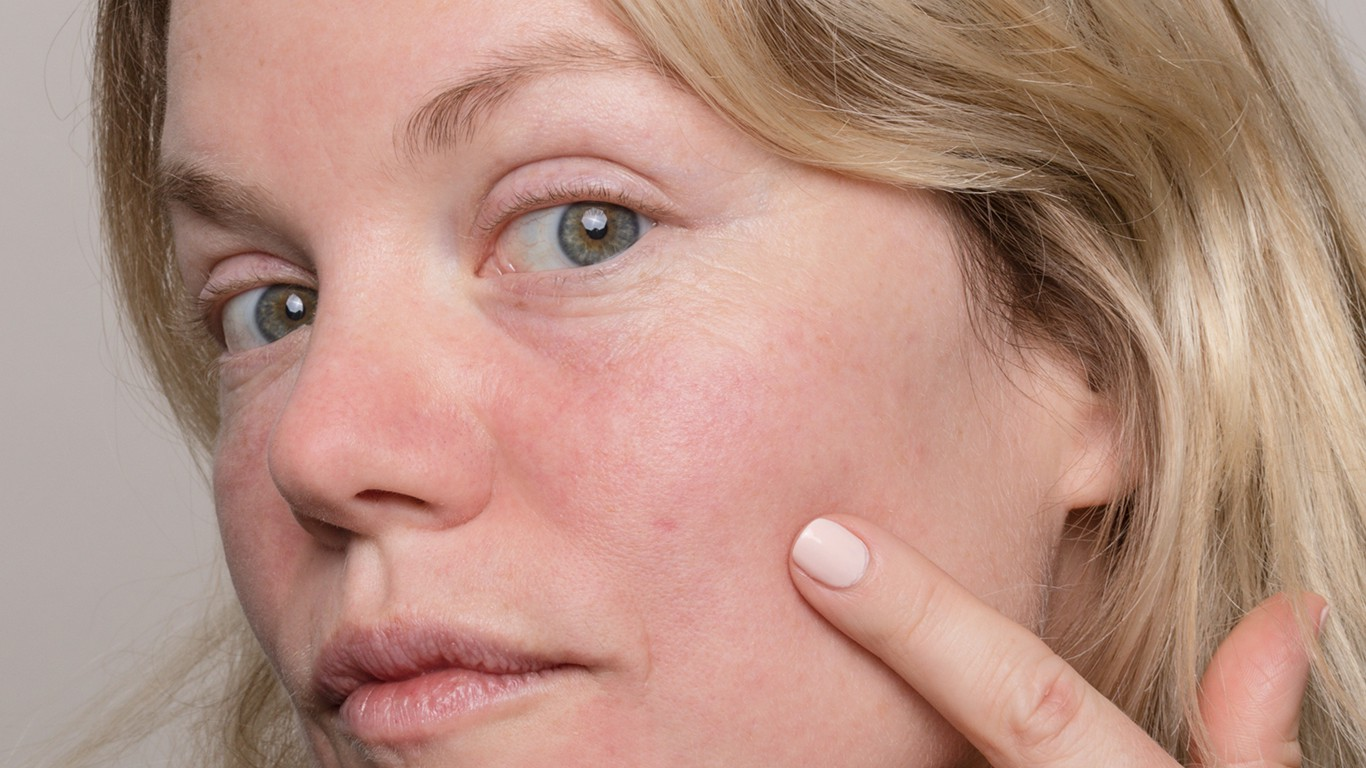 Ask Curology How Do I Get Rid Of Acne Scars By Allison Buckley Curology