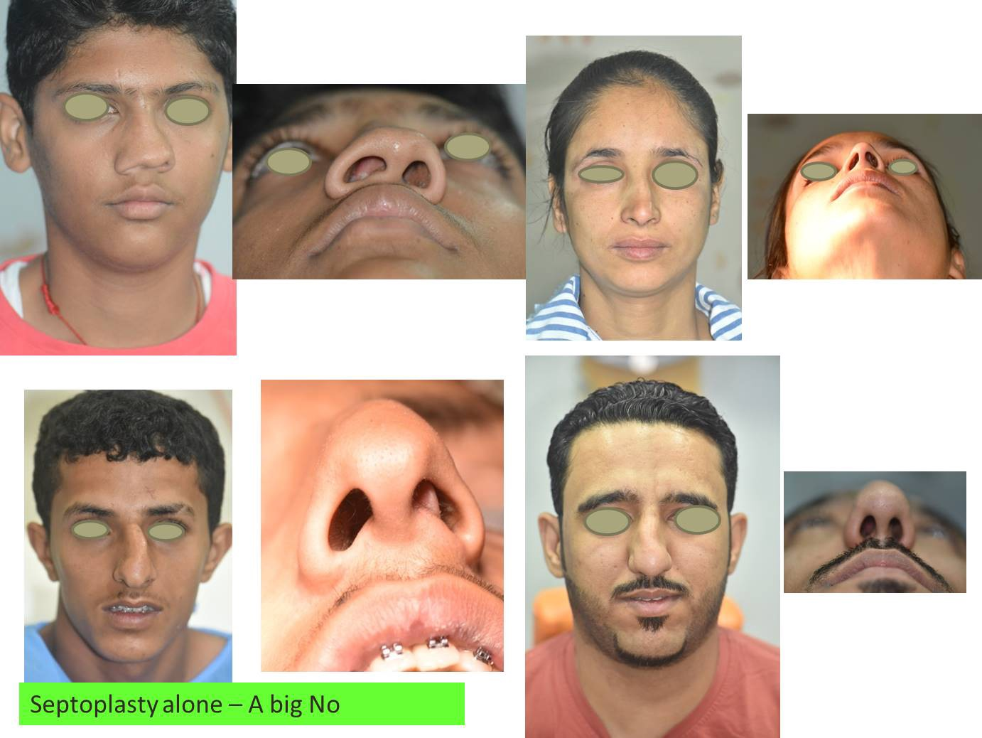 Crooked Nose And Deviated Nasal Septum By Dr Brajendra Baser
