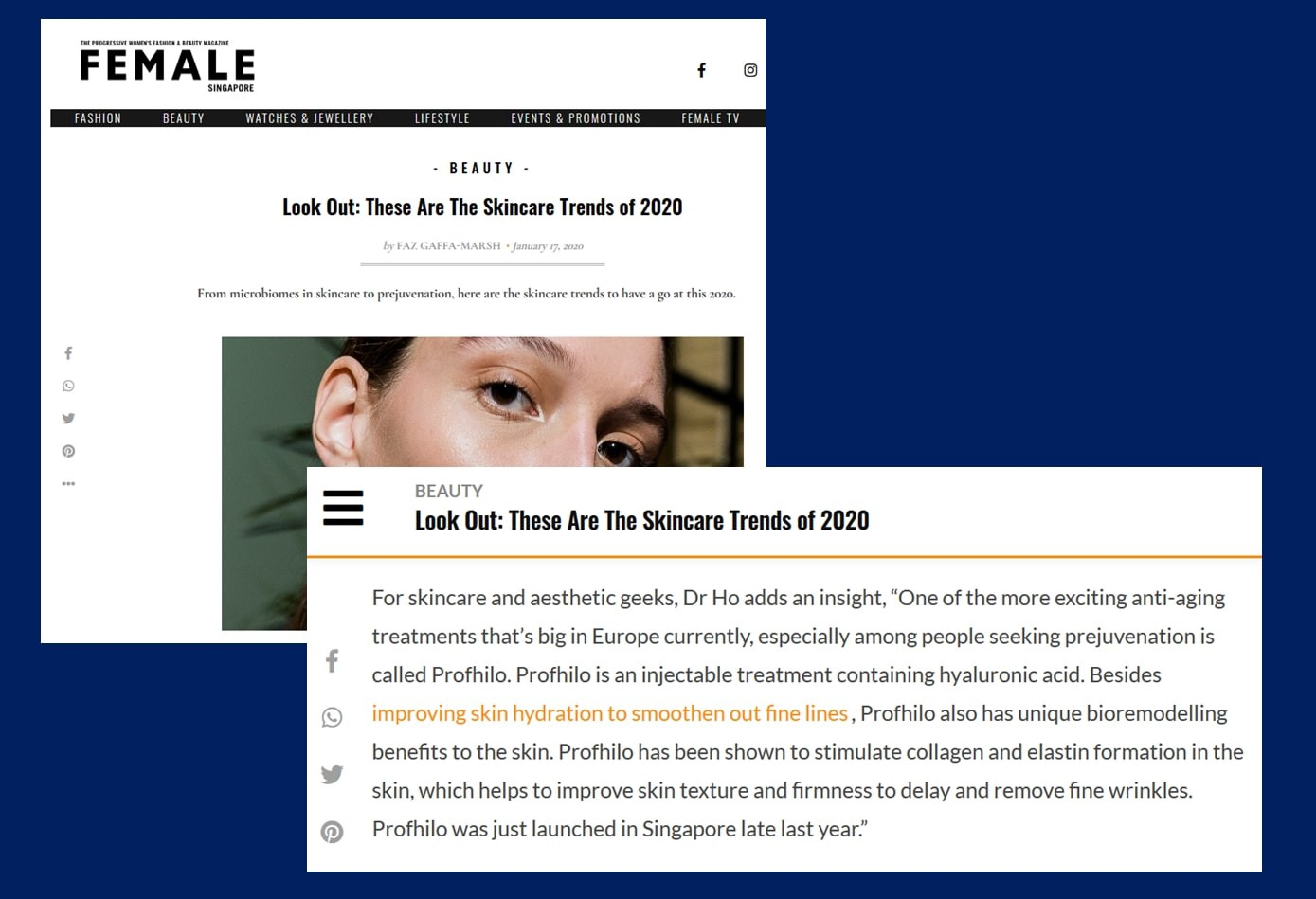 Profhilo The Best Anti Aging Treatment By Rachel Ho Medium