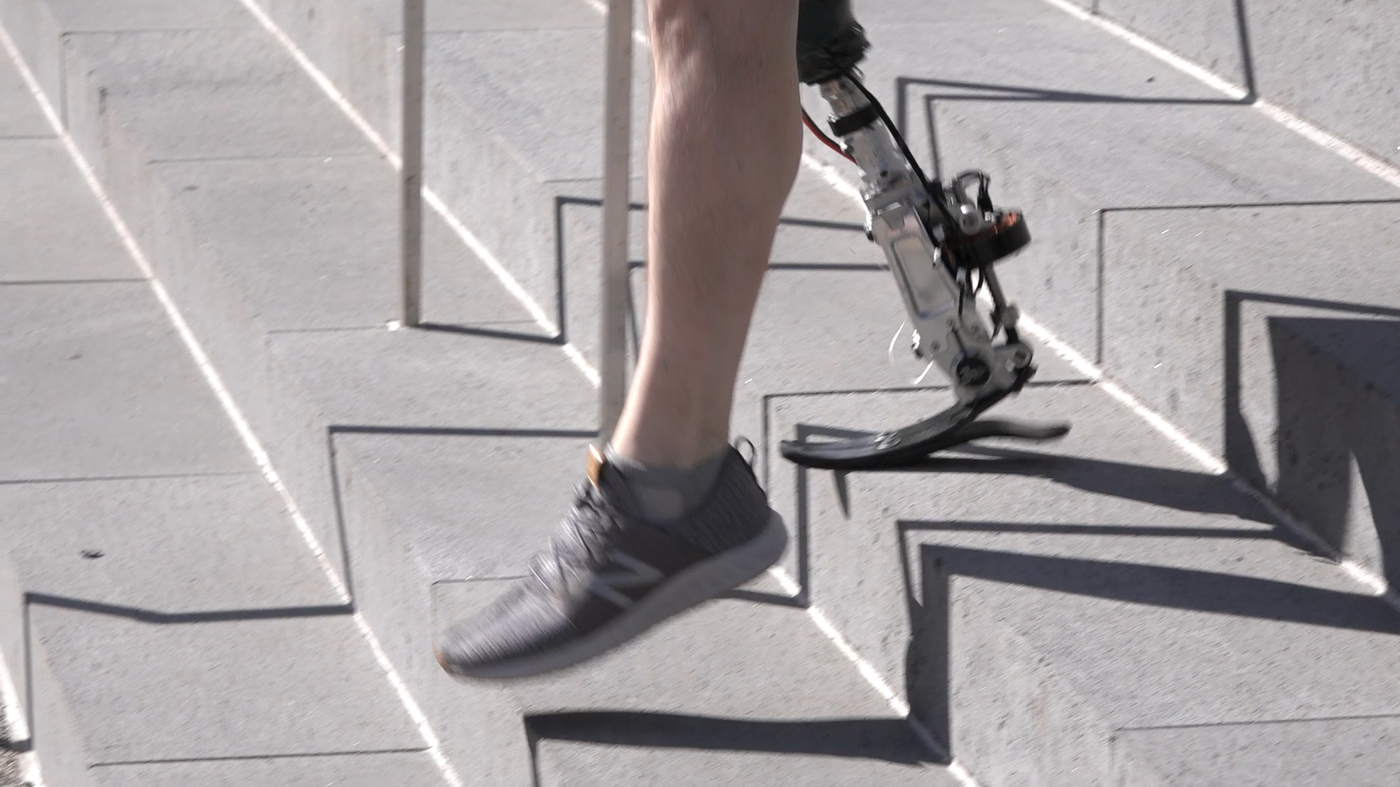 A man with a prosthetic leg walks down stairs.