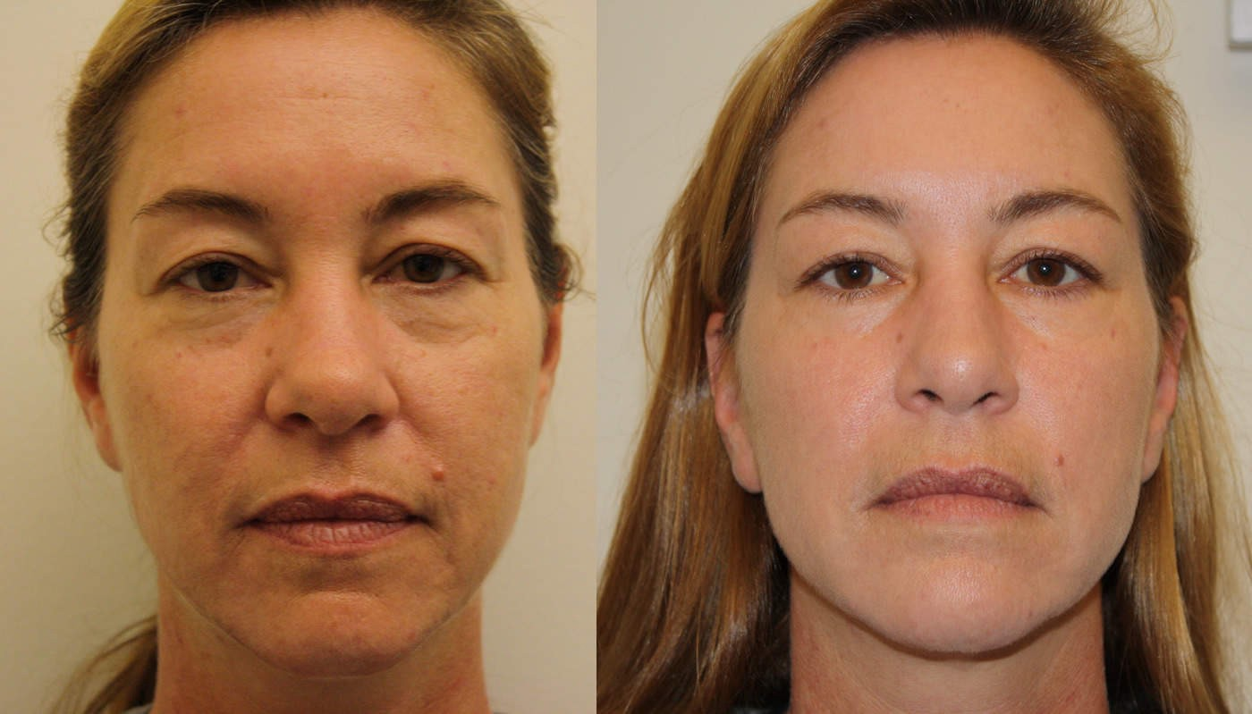 A non surgical facelift that gives you a full face lift