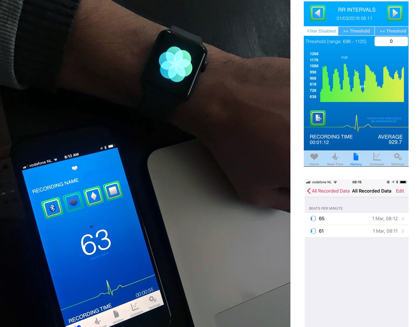 On Heart Rate Variability and the Apple Watch - Marco Altini