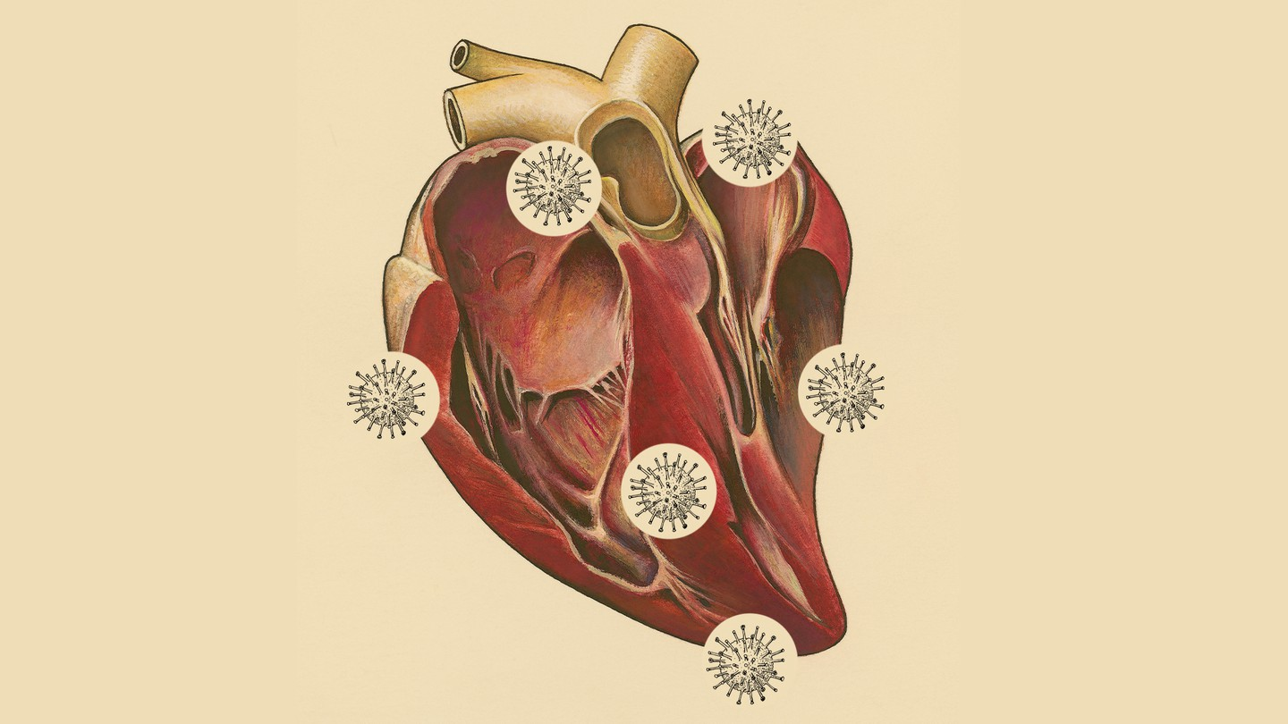 Anatomical illustration of a human heart with small coronavirus cells overlaid on it.