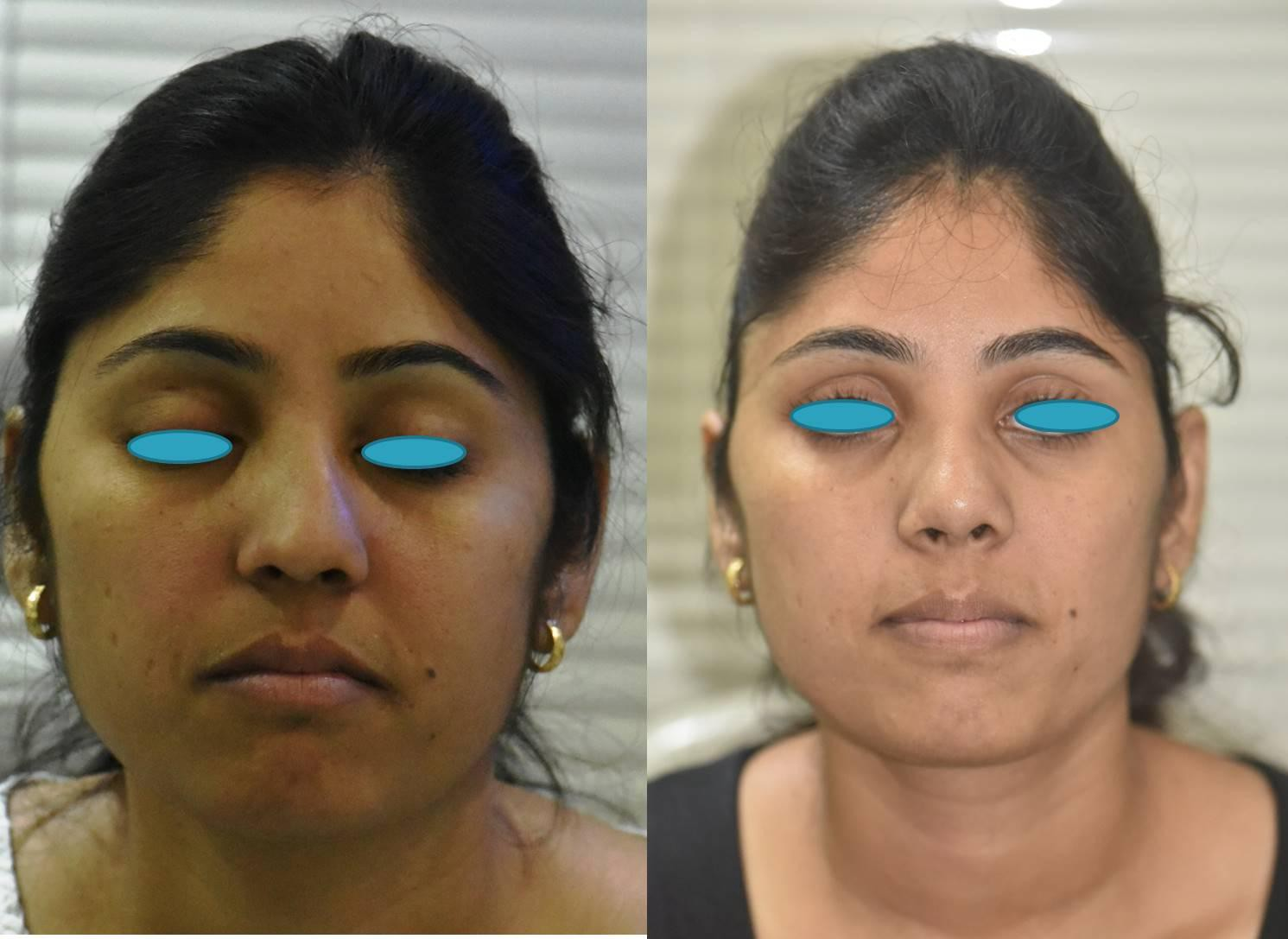 The single most common cause of a Failed Rhinoplasty