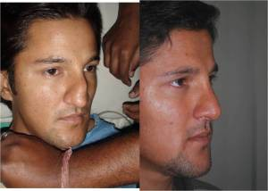 How Much Does Rhinoplasty Cost Can I Have A Cheap Rhinoplasty By Dr Brajendra Baser Medium