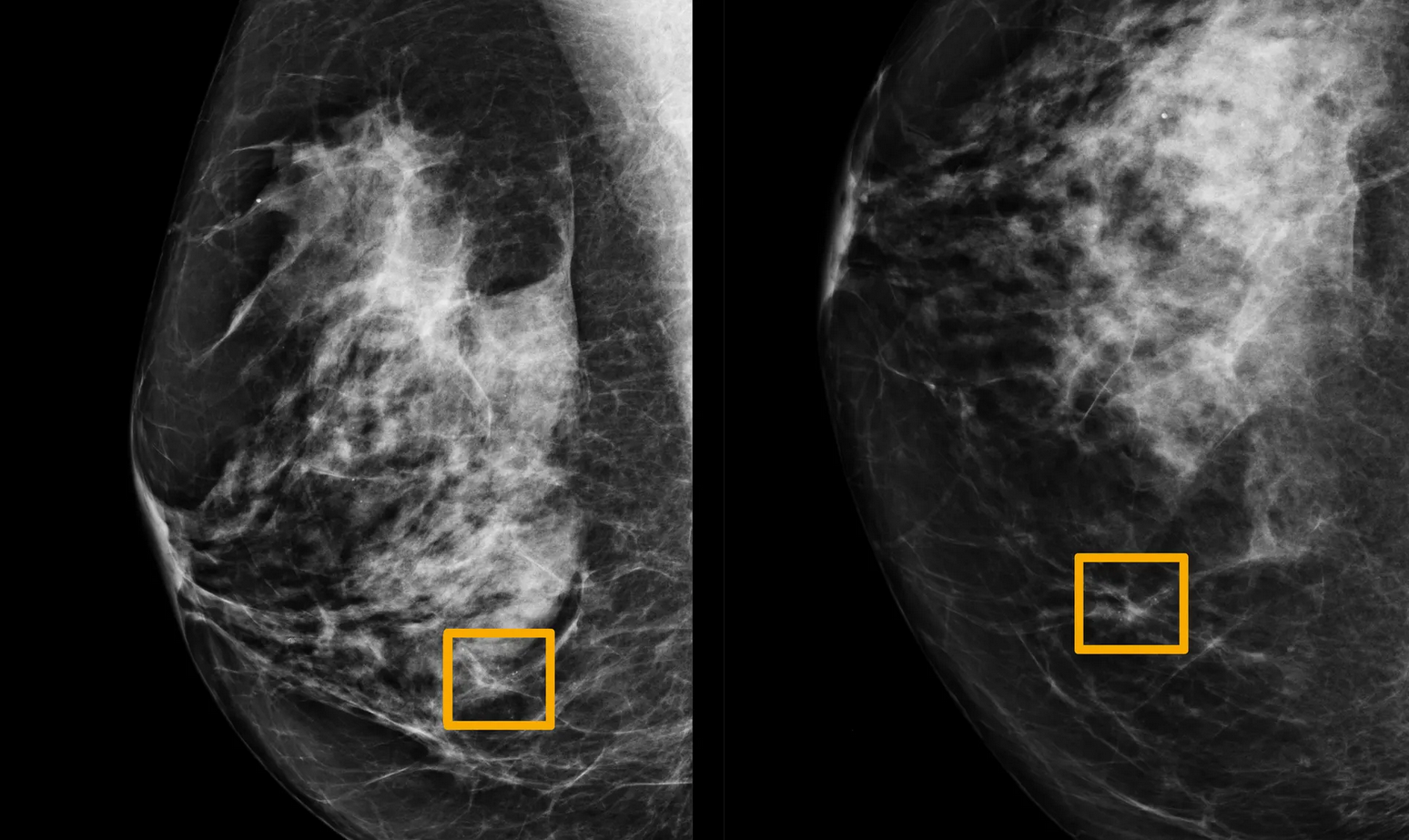 The Solution To Breast Cancer Is Finally Here Artificial