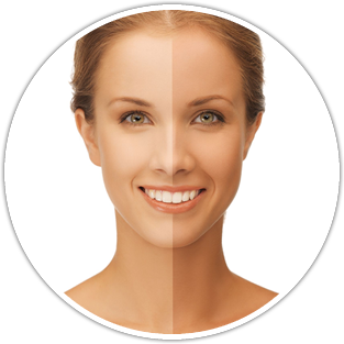 Ipl Photo Facial Treatment The Best Anti Aging Treatment By