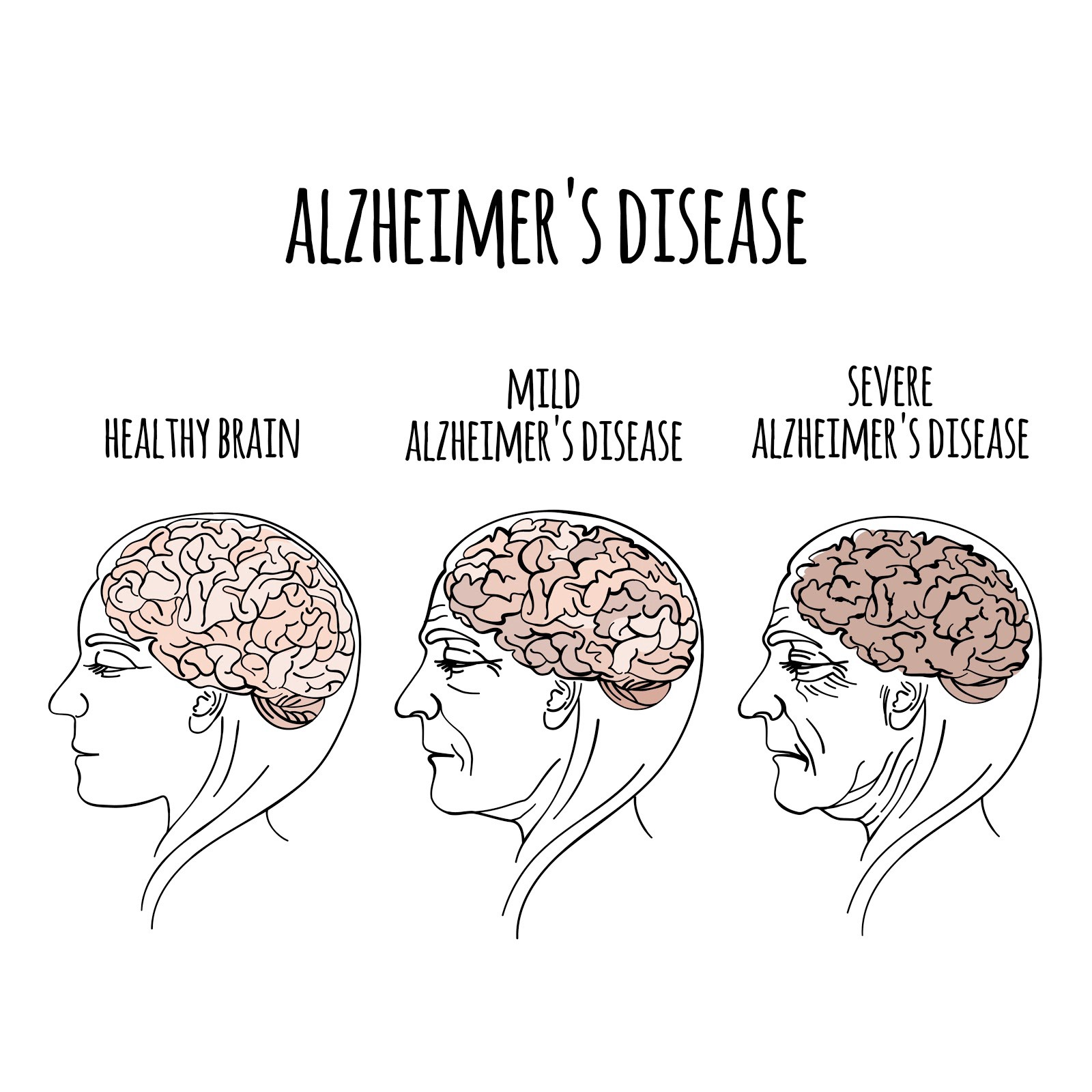 Alzheimer's Disease: The Stages of the Disease