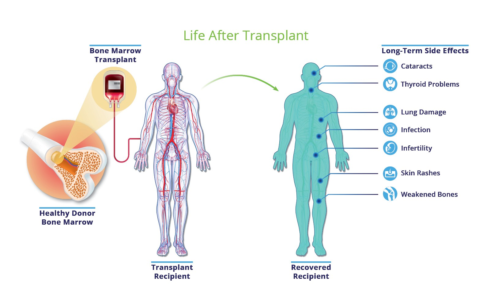 How Much Does An Allogeneic Stem Cell Transplant Cost By Nitish Chitkara Medium