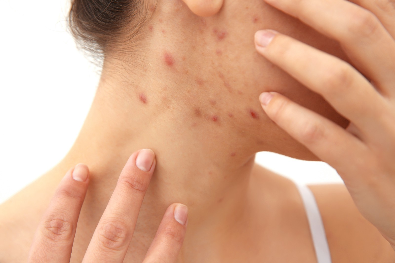 Get Rid Of Acne Scars Easily Here S How By Ls Aesthetic Clinic Medium
