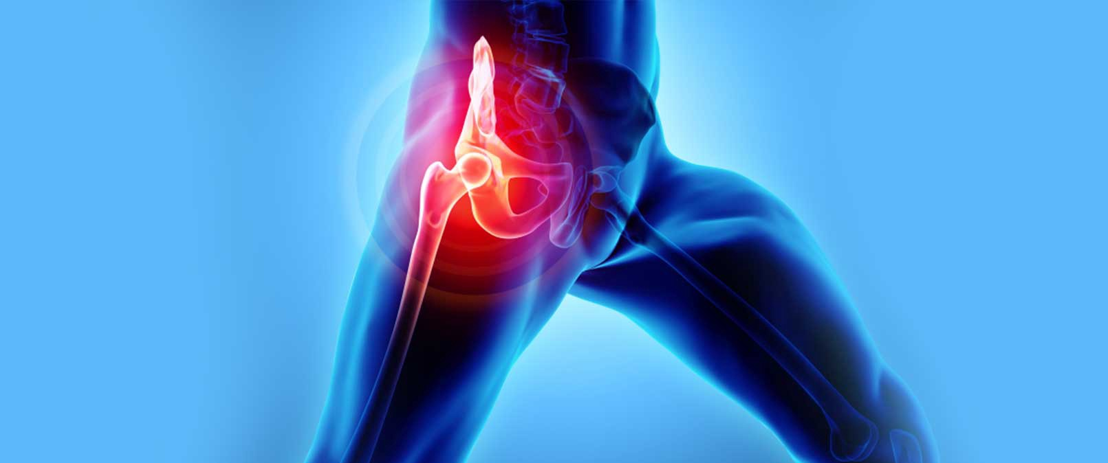 Recovery Guide for Hip Replacement Surgery - International