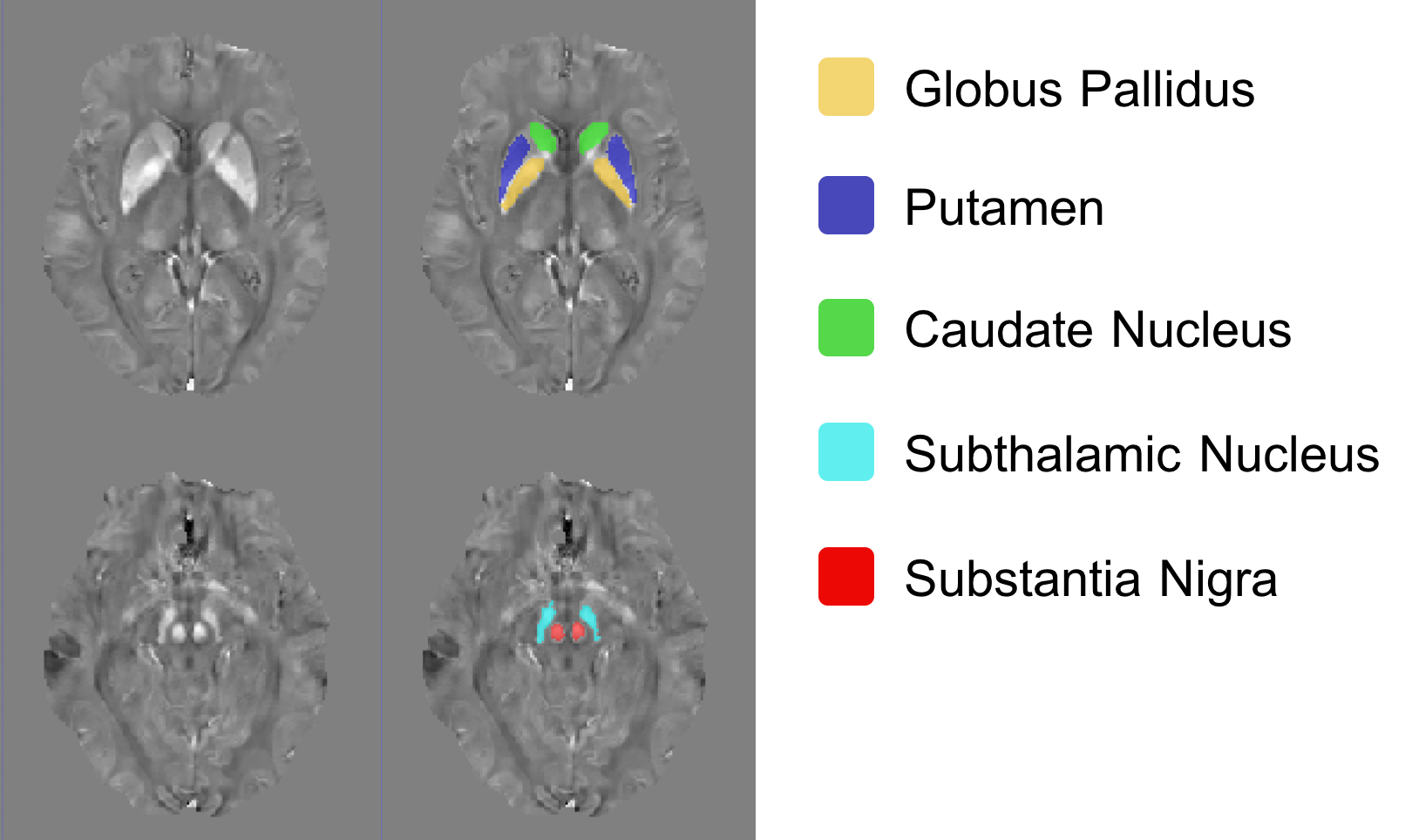 Deep Gray Matter (DGM) Segmentation using 3D Convolutional