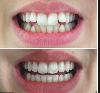 Unknown but effective Invisalign Nhs
