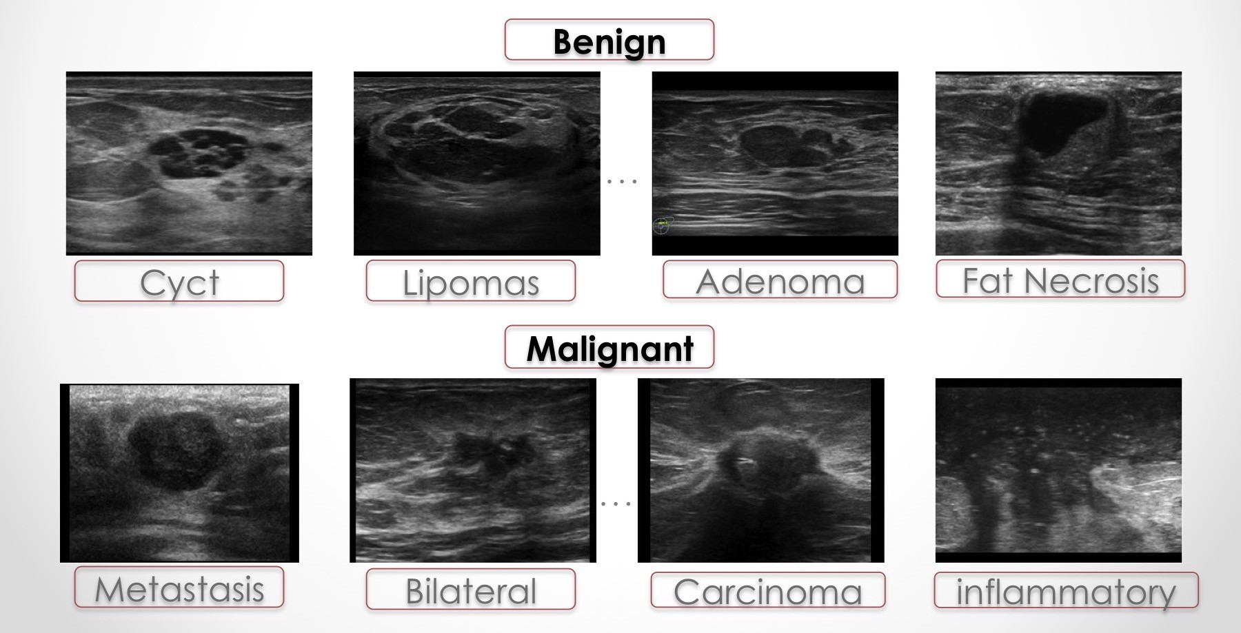 Transfer Learning For Breast Lesion Detection From Ultrasound Images By Sarah Kefayati Medium