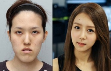 The Destructive Effects Of South Korea S Beauty Standards By