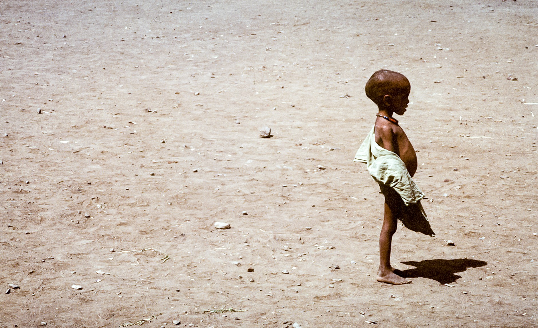 On a background of parched earth, a very thin black child with a distended belly stands in profile, facing to the right.