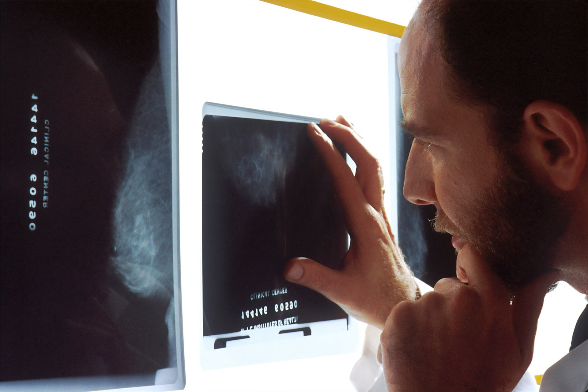 A medical doctor analysing a cancer scan