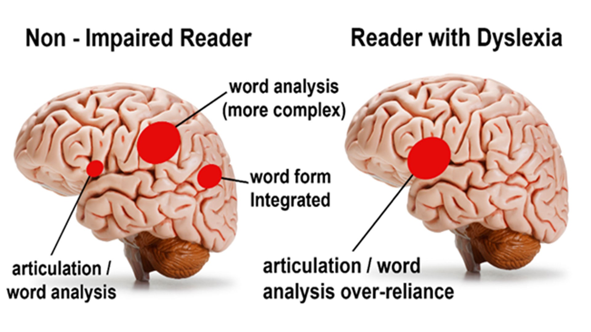 The left brain — comparing dyslexic and non-dyslexic brains.