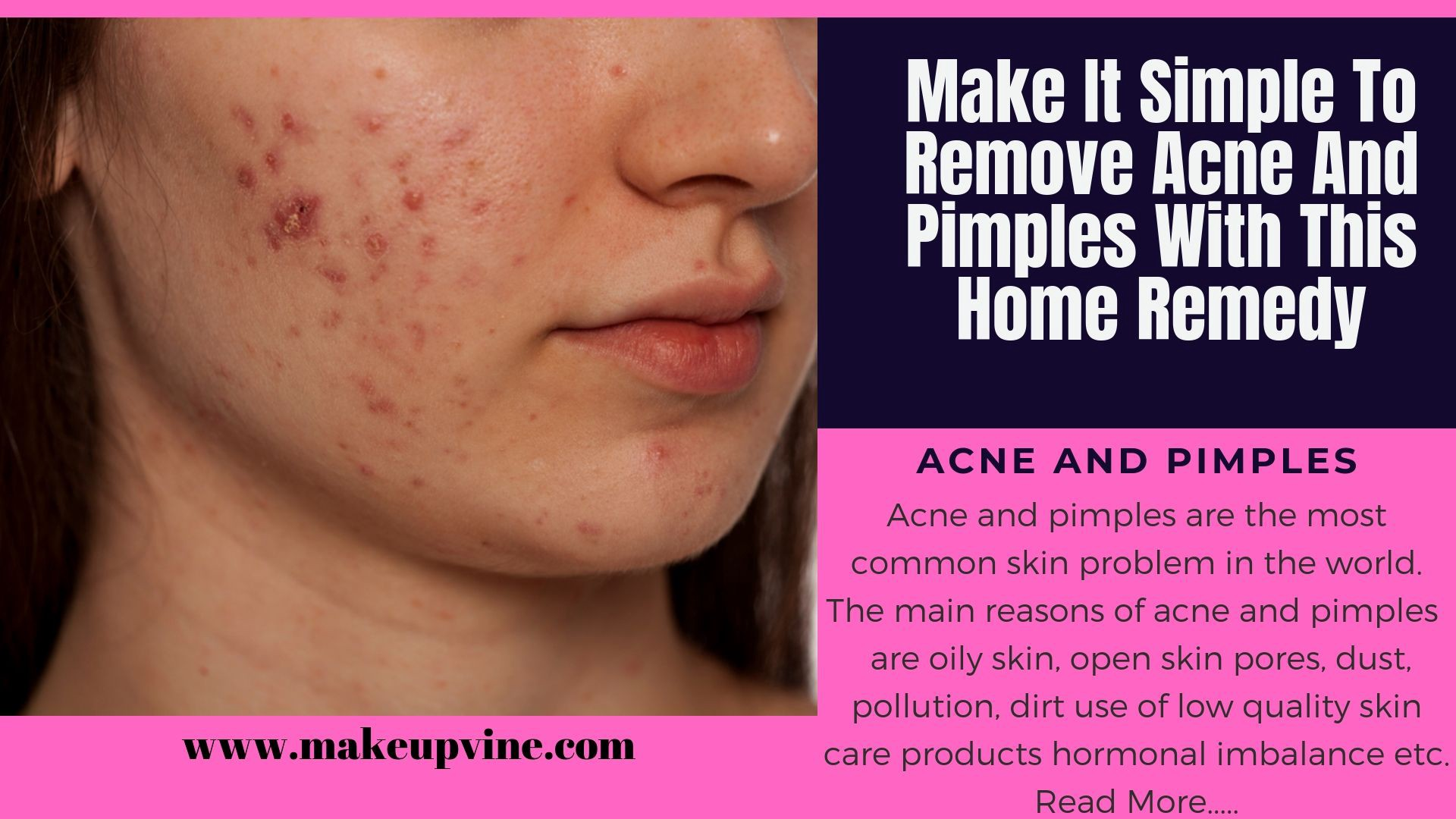 Make It Simple To Remove Acne And Pimples With This Home Remedy
