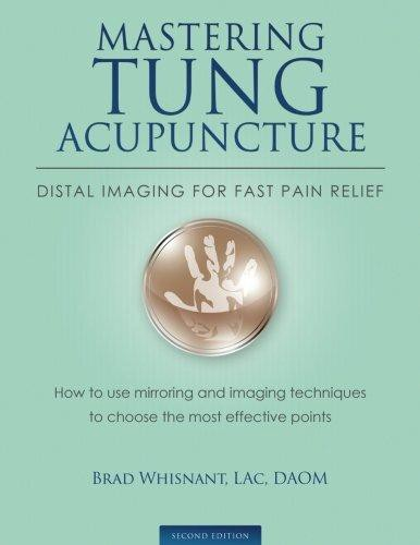 Image result for Brad - Mastering Tung Acupuncture - distal imaging for fast pain relief