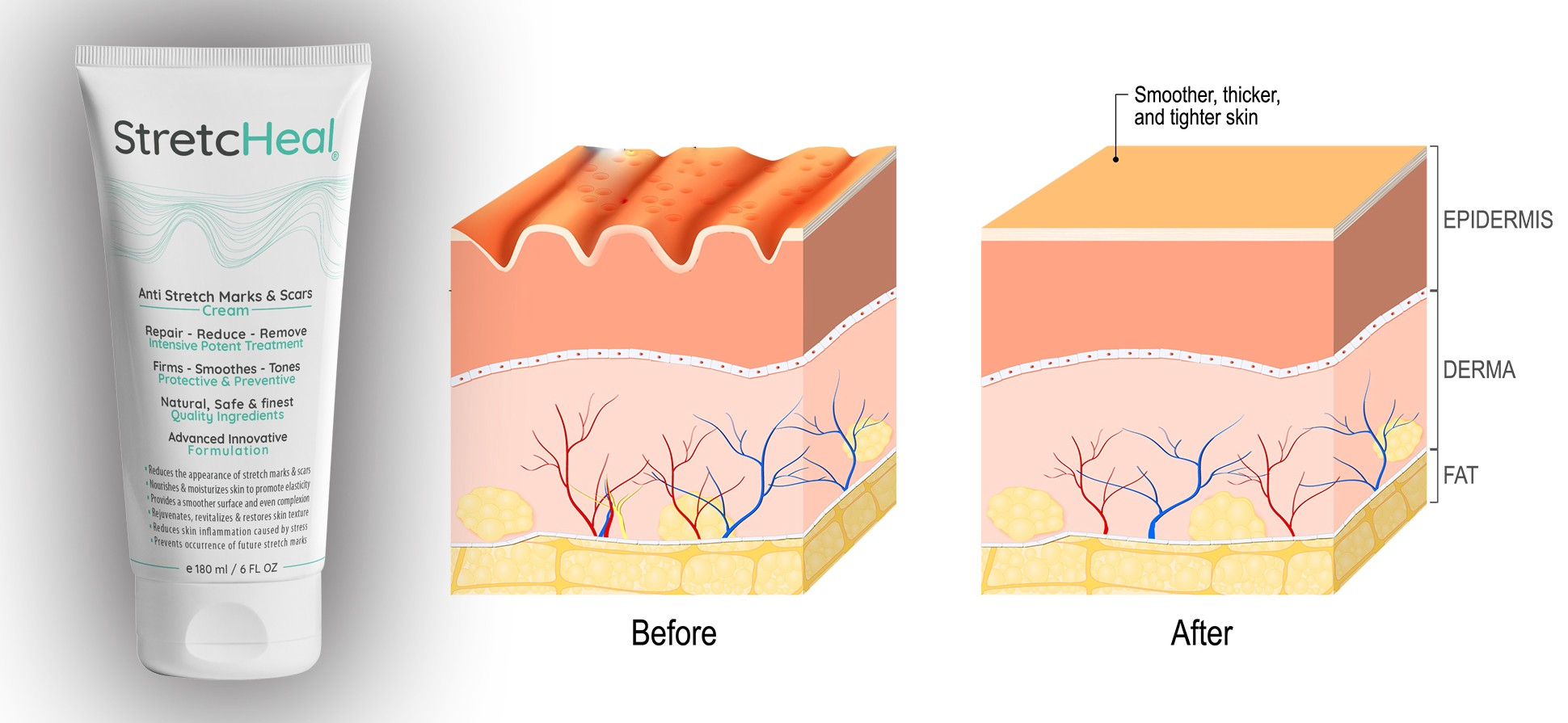 STRETCHEAL REVIEW: THE BEST WAY TO GET RID OF STRETCH MARKS