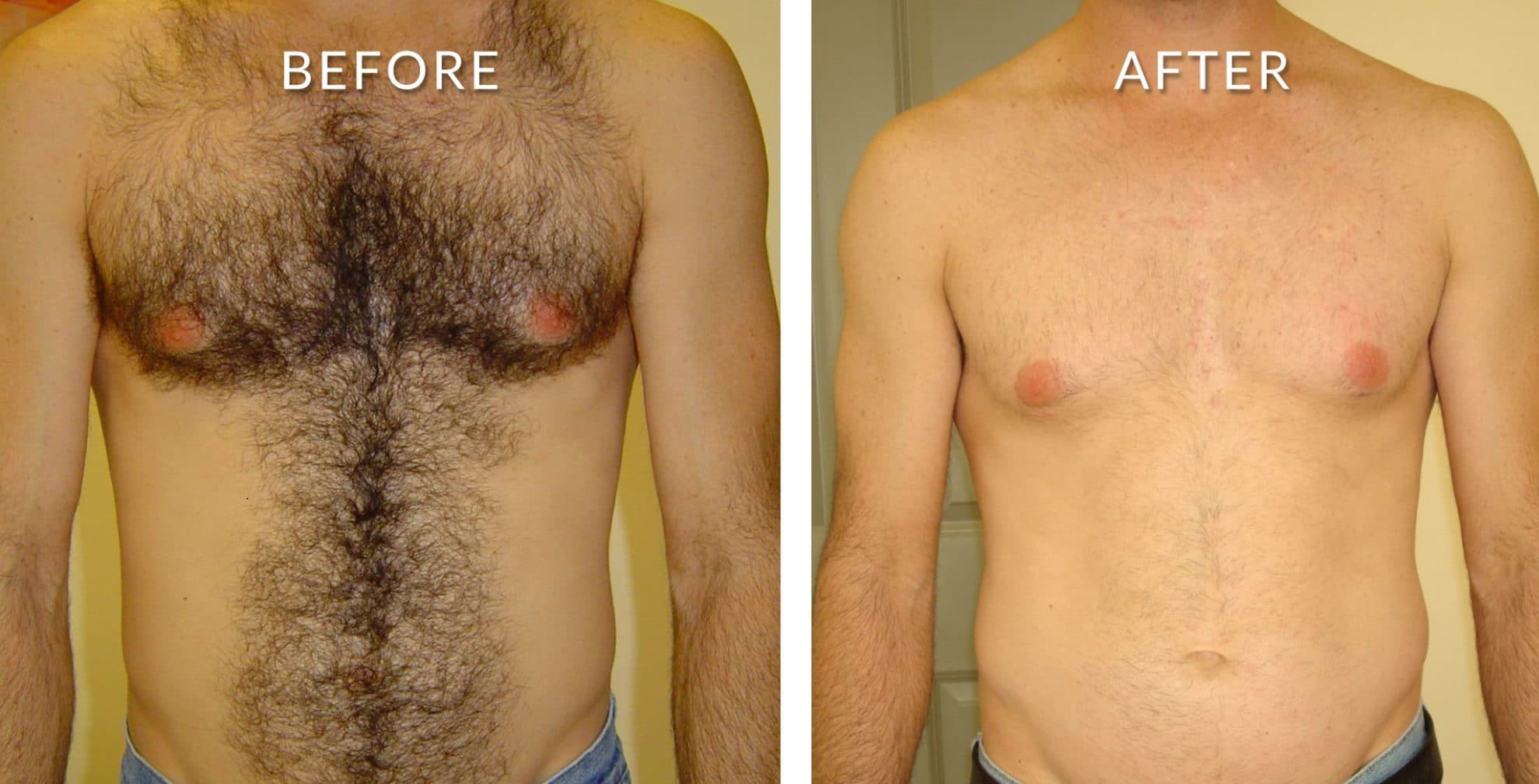 Best Laser Hair Removal Treatment In Bangalore By Pragathi