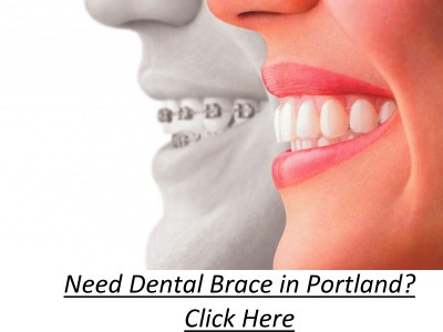 Some Known Factual Statements About Affordable Braces