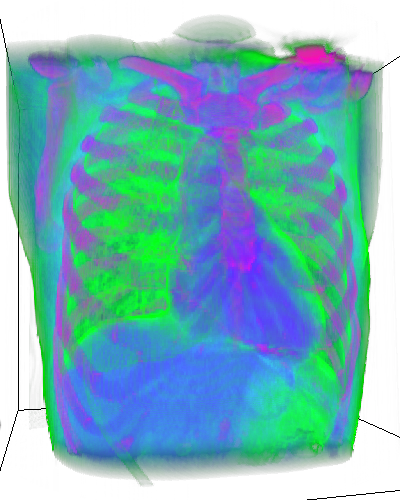 How to easily train a 3D U-Net or any other model for lung