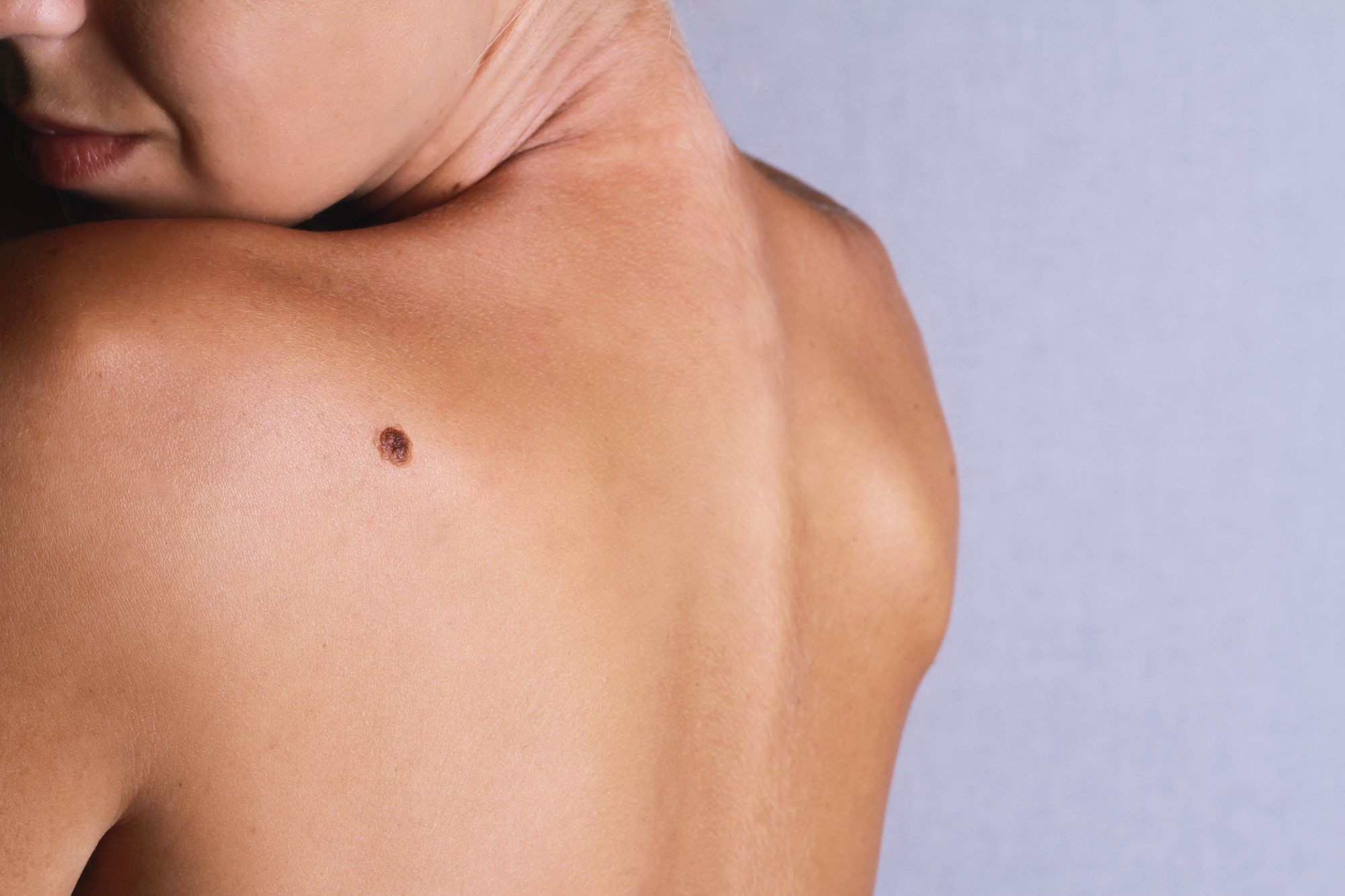 Skin Tag And Mole Removal Cryotherapy By Veera Vp Medium