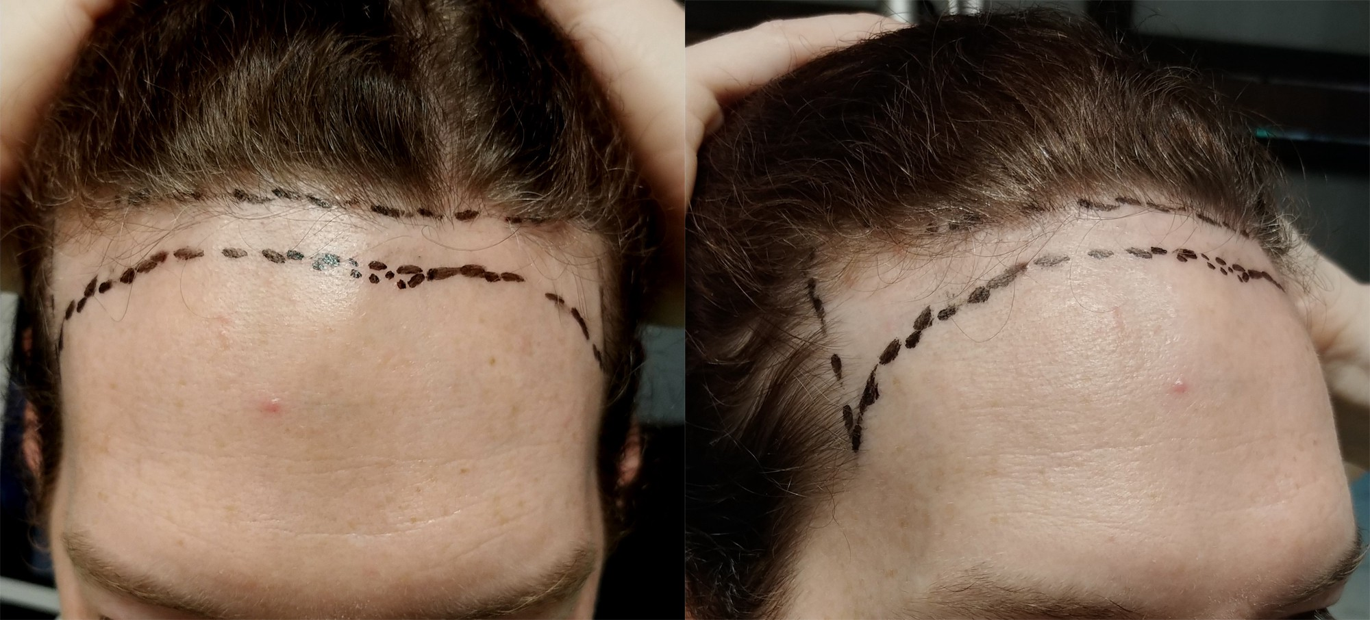 I Got A Hair Transplant — Here's What It Was Like (With