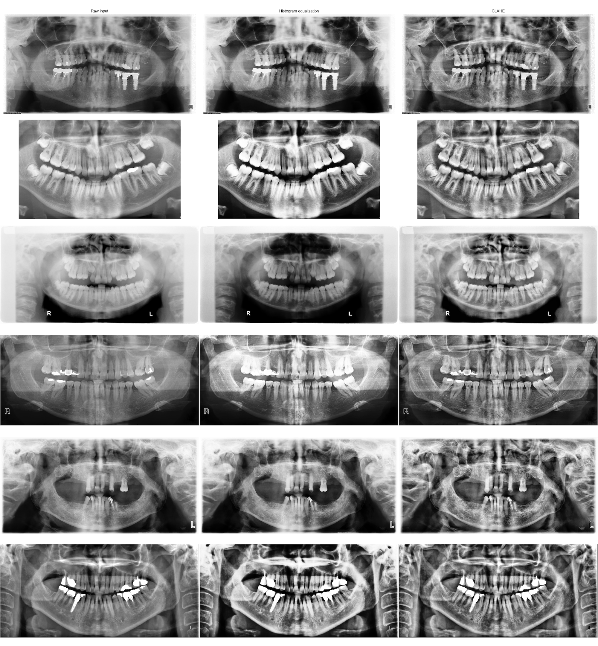 Improving deep learning object detection on dental x-rays