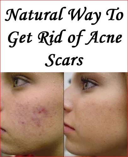 How To Get Rid Of Acne Scars Naturally With Home Remedies By Healthhnbt Medium