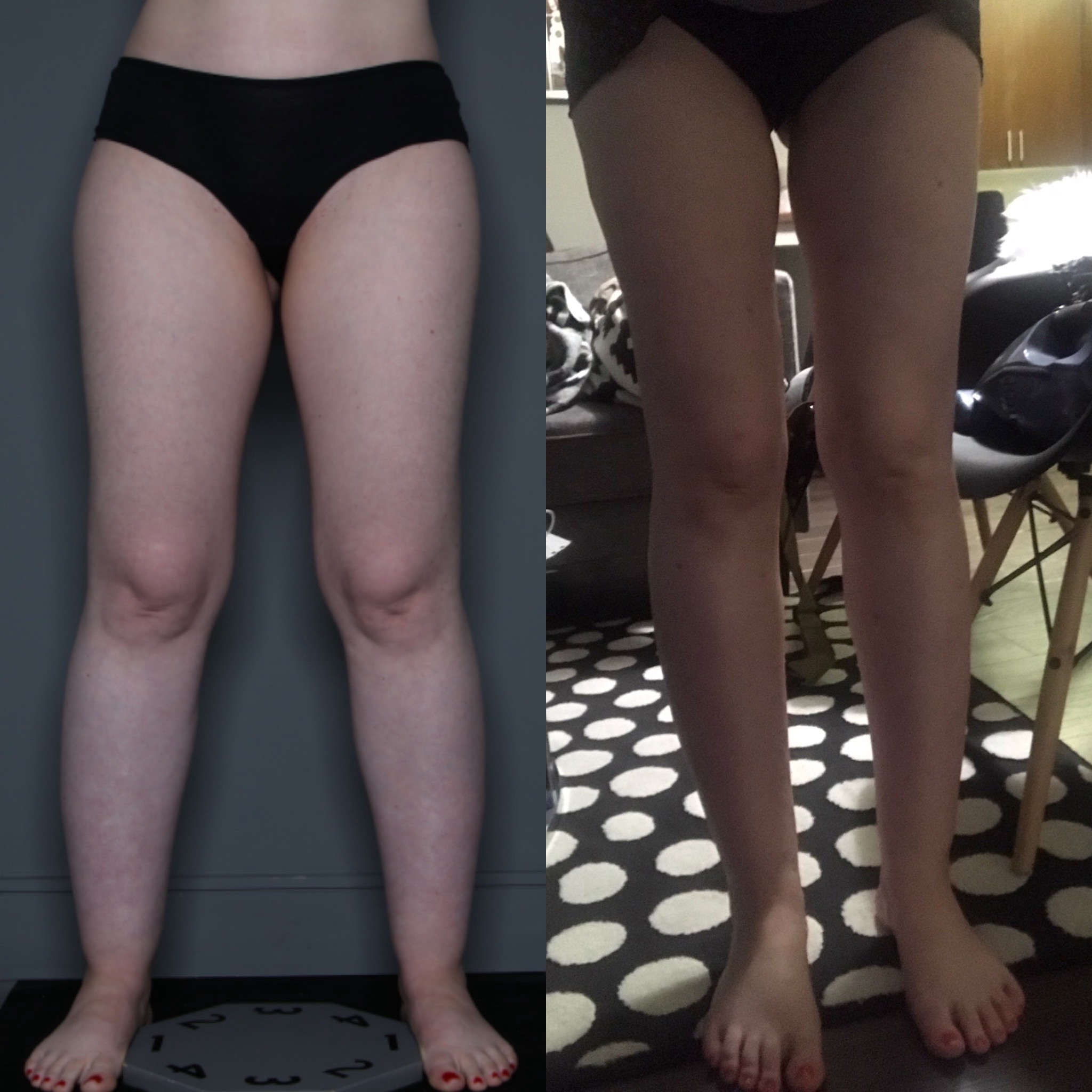 Recovering From Leg Liposuction Everything You Need To Know To Have A By Carol Nogueira Jul 2020 Medium