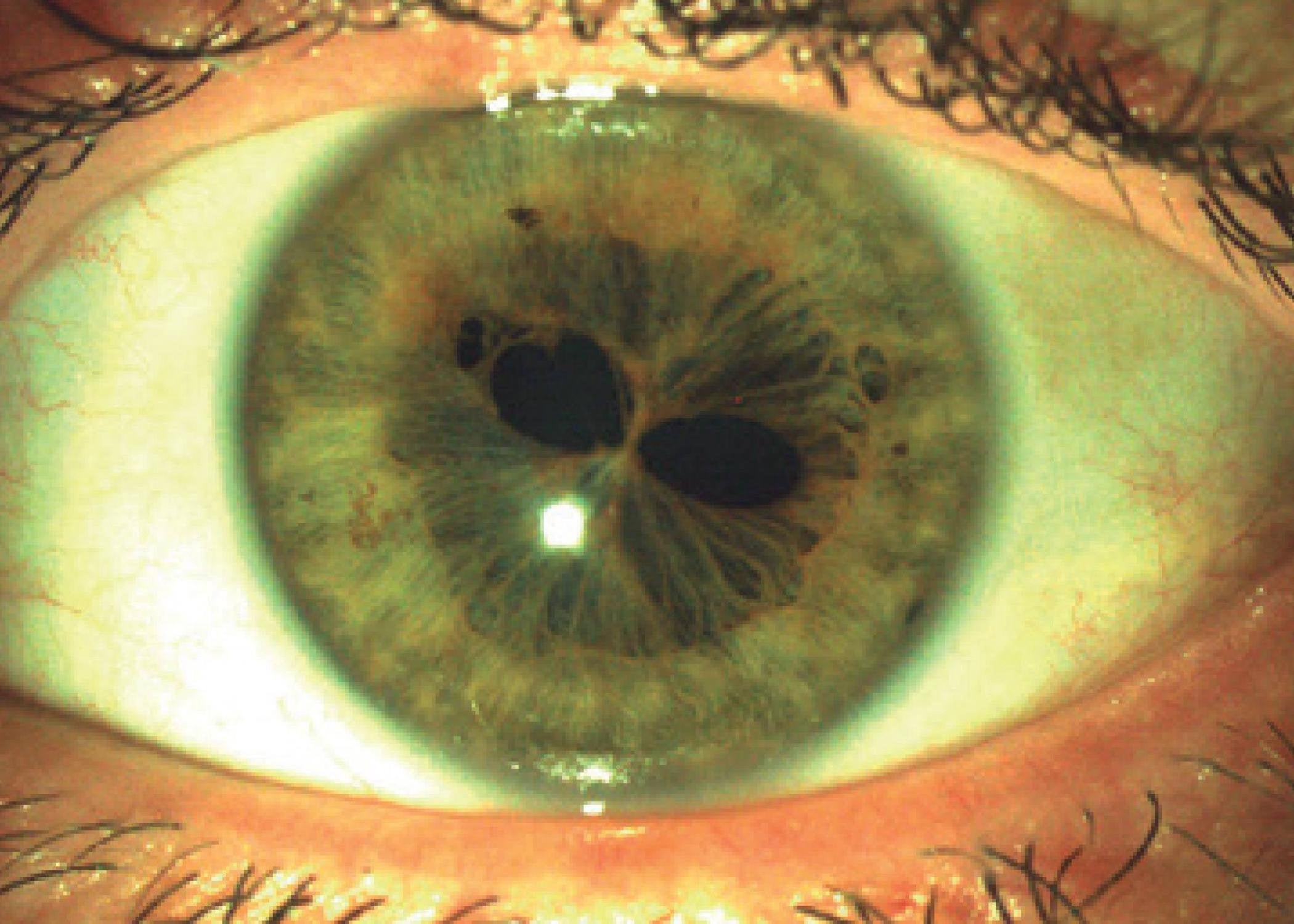 Headline: Two Pupils in One Eye? That's what Polycoria is and It's  Absolutely Insane! | by Optometry Daily | Medium