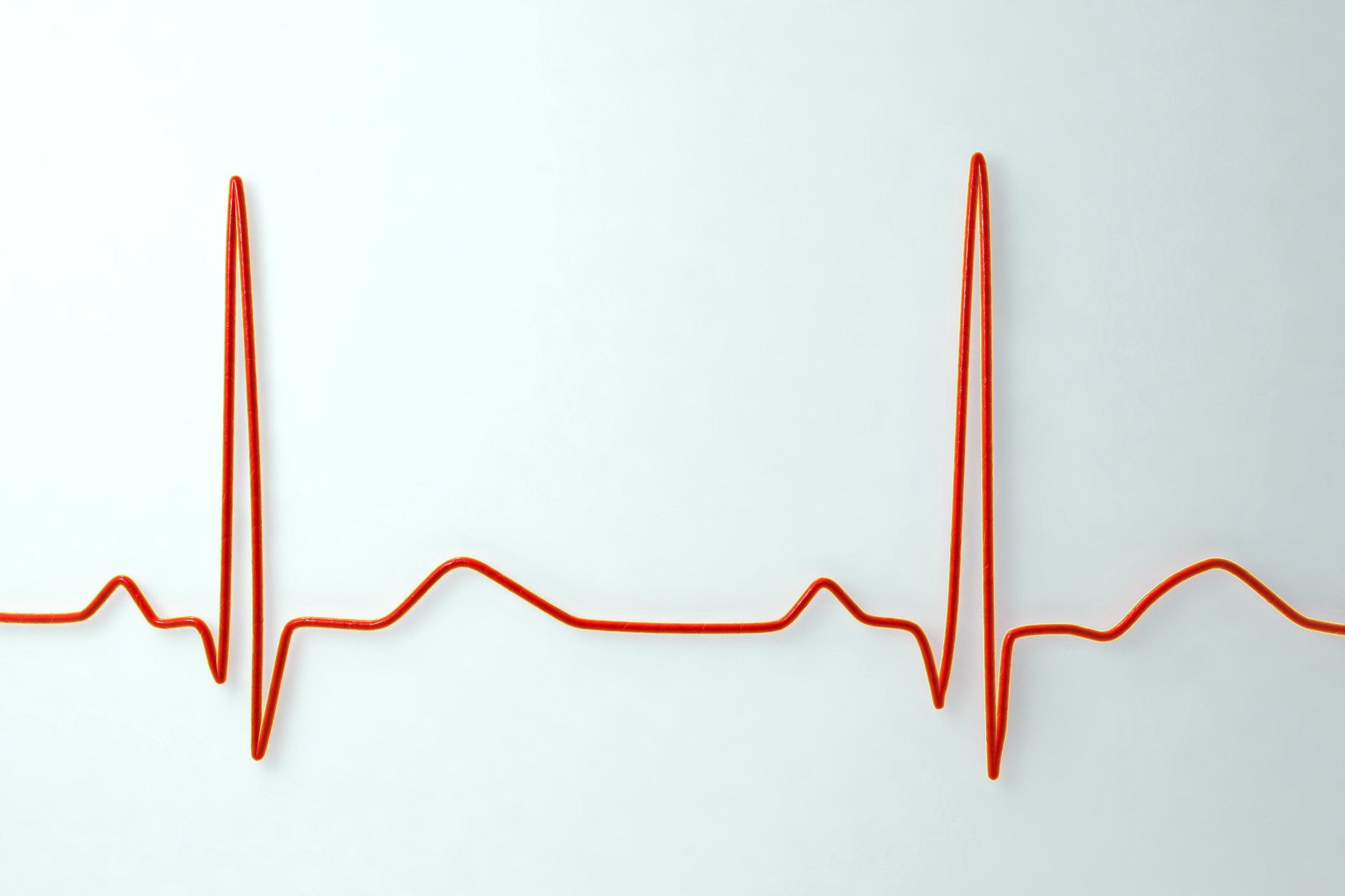 What is A Normal Resting Heart Rate? | Elemental