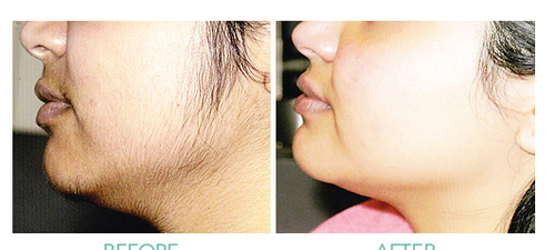 How Long Does Laser Hair Removal Take By Arpit Goel Medium