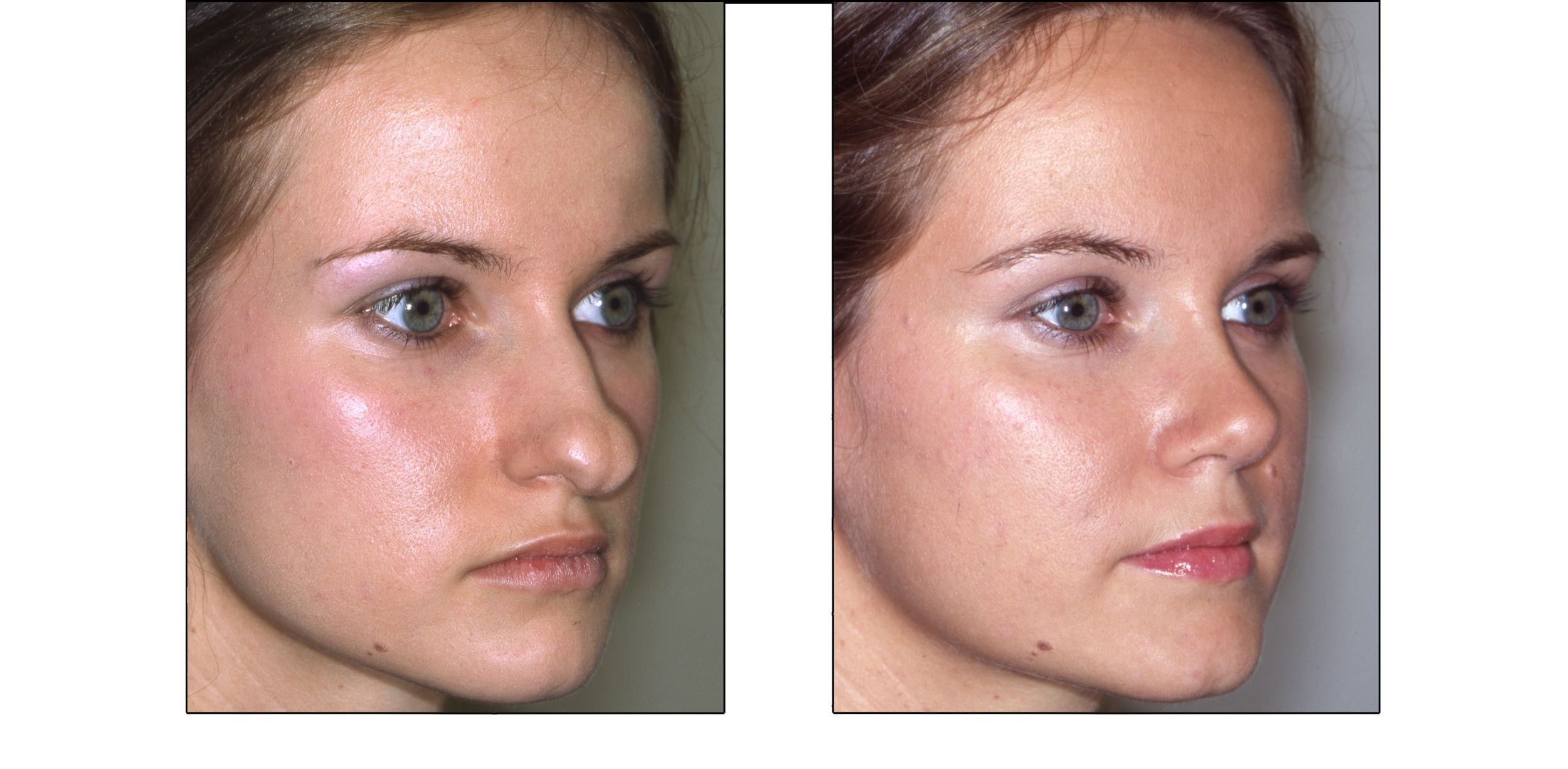 Before and after photographs of a rhinoplasty patient.