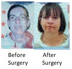 Pre-jaw reconstruction surgery and Post-jaw reconstruction surgery photos of a middle aged woman