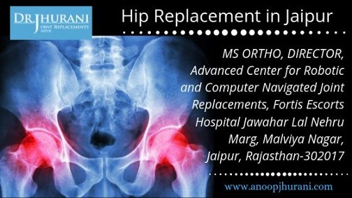 Hip Replacement in Jaipur
