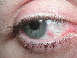 Picture of a tired, bloodshot eye.