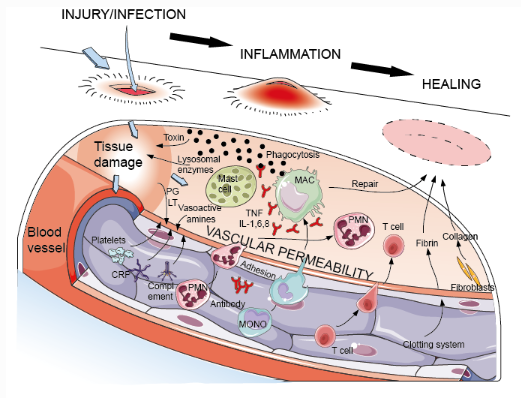 Inflammation is a necessary pathway to fight infection and progress towards healing.