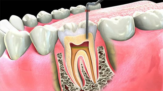 Root canal on an existing crown - Jim Sarji, DDS - Medium