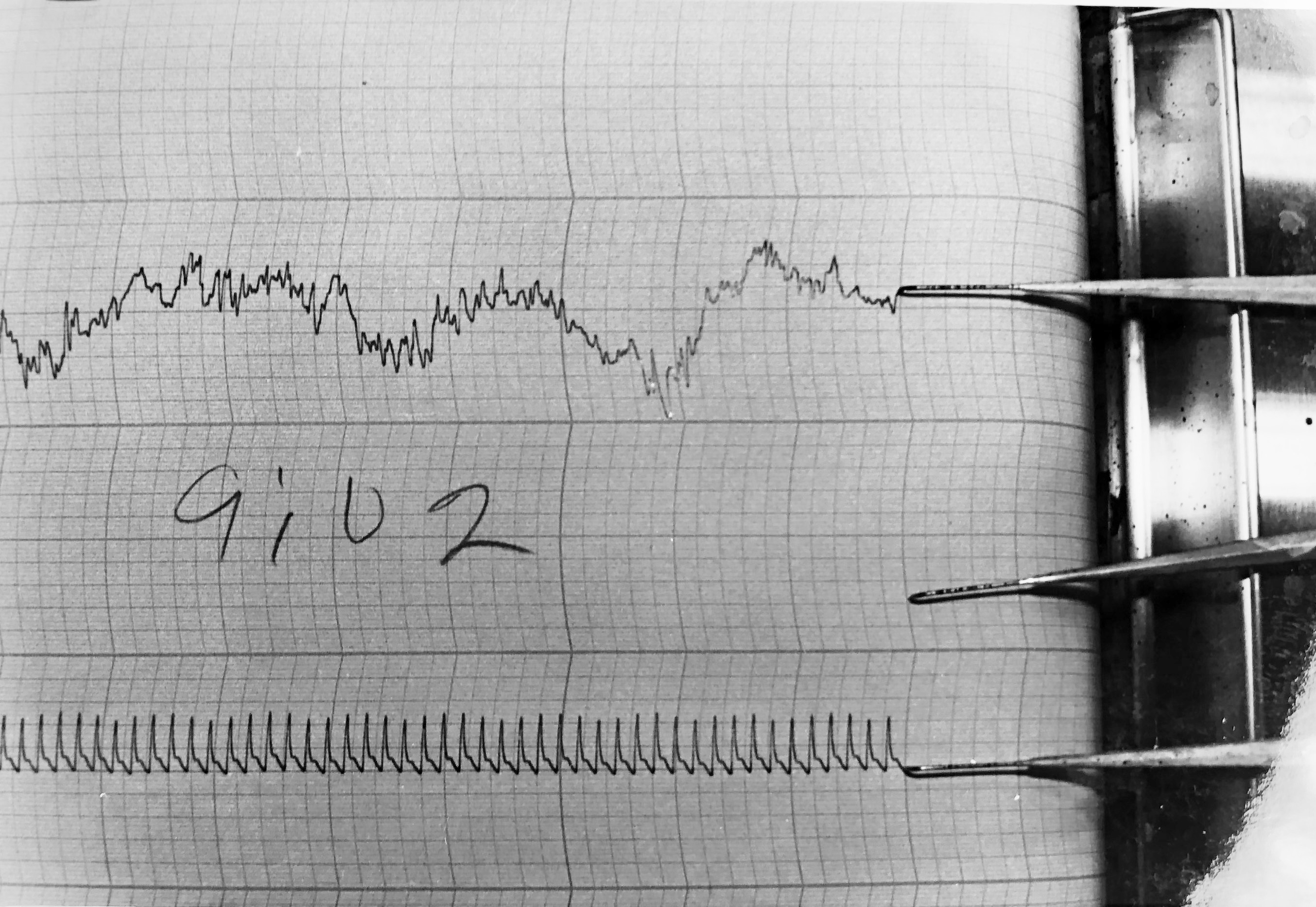 EEG graph paper from Dr. White's Lab
