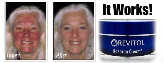 Revitol Review Rosacea Cream By Rosacea Treatments Medium