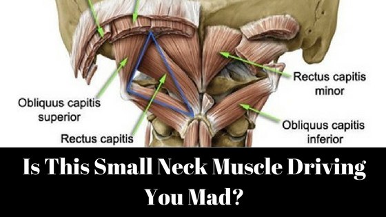 Is This Small Neck Muscle Driving You Mad? - Dr  Jonathan