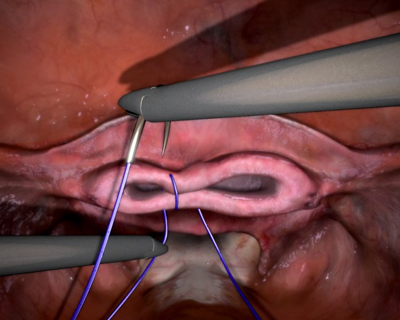 Nerve Damage to the Vaginal Cuff After Total Hysterectomy*