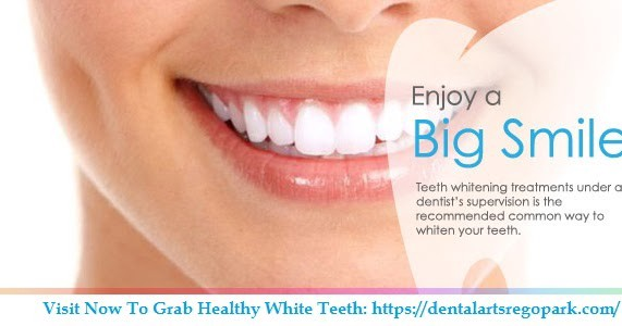 How Much Does Teeth Whitening Cost By Dental Arts Rego Park